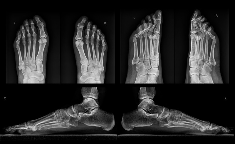 Digital x-ray at Podiatrist in Lone Tree CO
