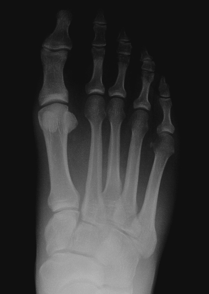 stress fracture, foot, xray, denver, lone tree, podiatrist, foot surgeon. ankle surgery